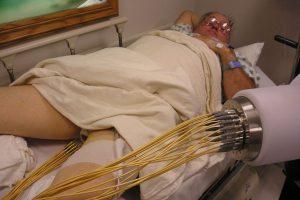 Новый метод радиотерапии для лечения рака простаты