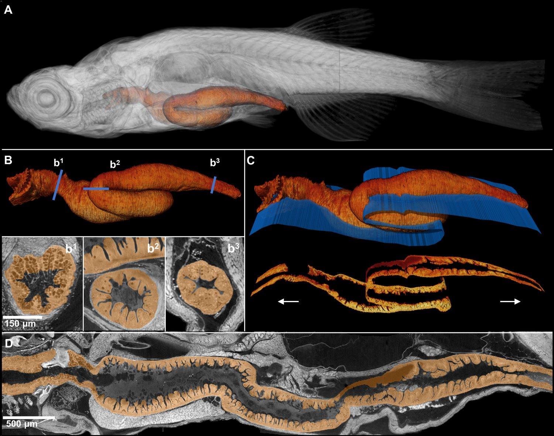 Рентгеновская гистотомография