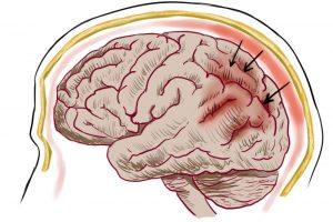 Первопричины рассеянного склероза