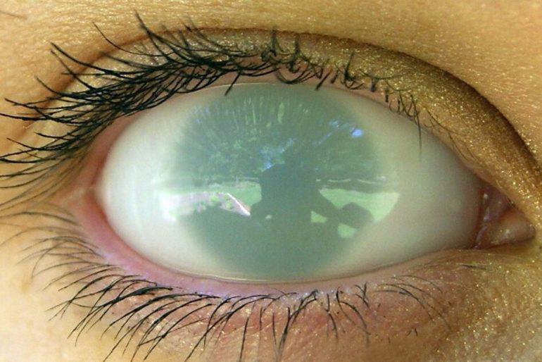 На слепоту влияют географические факторы