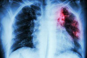 Лекарственно-устойчивый туберкулез
