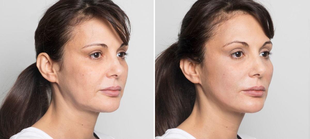 Фото пациентки до и после армирования лица золотыми нитями