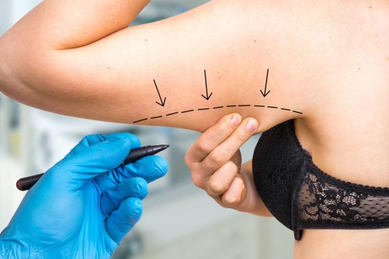 Брахиопластика - все, что нужно знать об операции