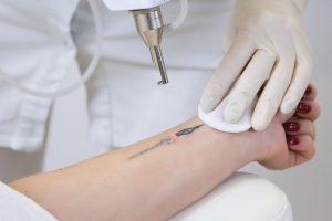 6 мифов про лазерное удаление тату