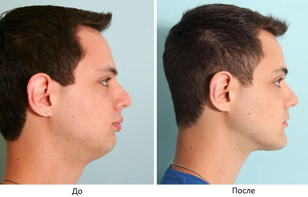 Фото №1 - до и после ментопластики (мужчина)