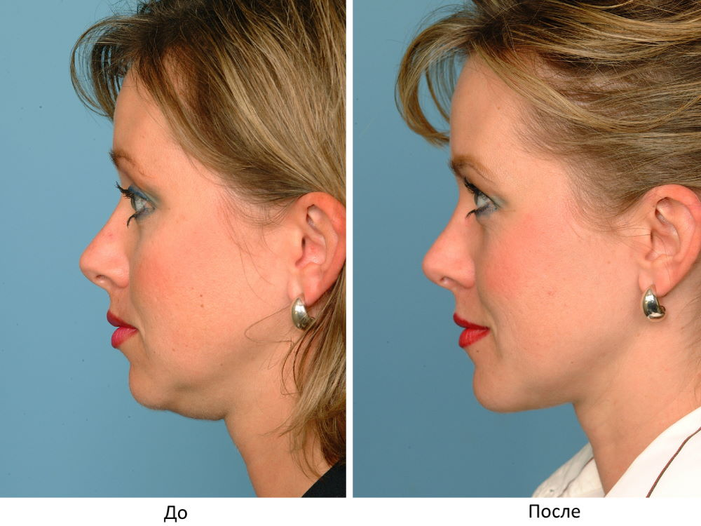 Фото №2 - до и после ментопластики (женщина)