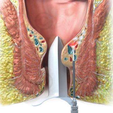 Лазерная геморроидопластика или открытая хирургическая геморроидэктомия