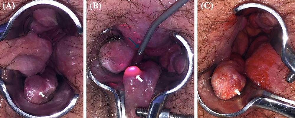 Как проходит лазерная геморроидопластика