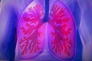 Наночастицы помогают бороться с раком легких
