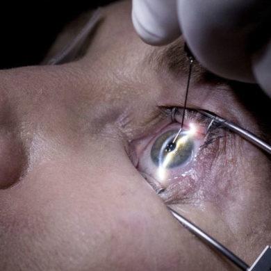 Лазерная коррекция зрения при лечении миопии
