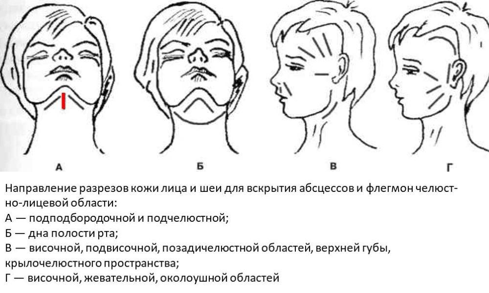 Оперативное лечение флегмоны челюстно-лицевой области