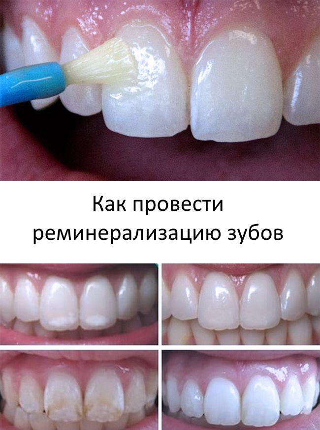 Как проводить реминерализацию зубов