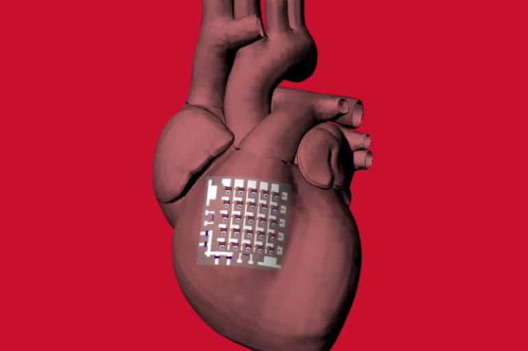 Конформный биоэлектронный пластырь контролирует здоровье сердца